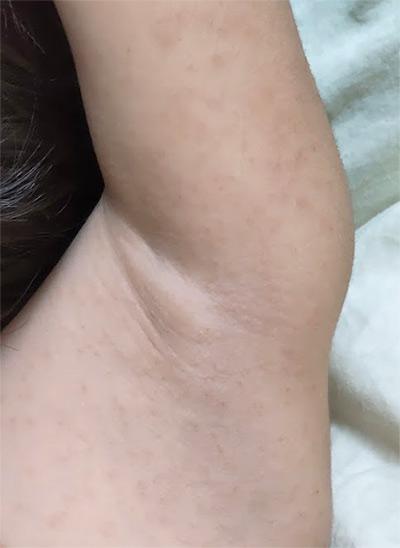 チャドクガ 皮膚炎写真 3